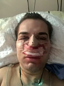 Marbella Man Addicted To Plastic Surgery 93 6 Global Radio